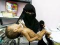 قطحی در یمن (11)