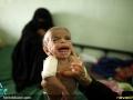 قطحی در یمن (14)