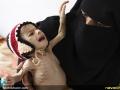 قطحی در یمن (20)
