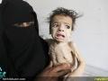 قطحی در یمن (3)