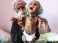قطحی در یمن (7)