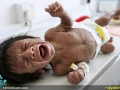 قطحی در یمن (9)