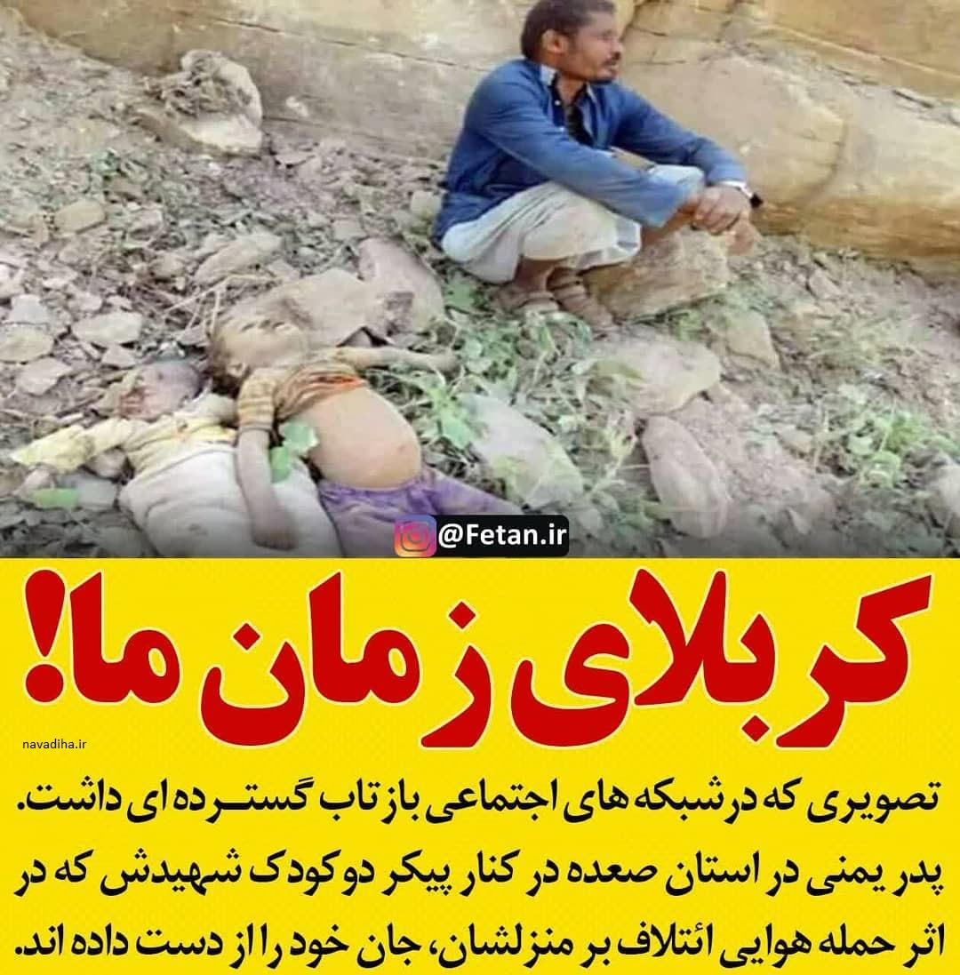 کربلا در یمن / قتل عام مظلومانه یمنی ها و سکوت جوامع بین المللی و مدافعان حقوق همه چیز جر انسان!/ وطنی ها چرا خفه شدند؟! + کلیپ